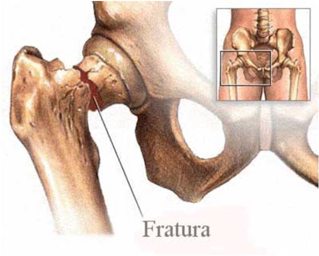 fisioterapia_ortopedica_3